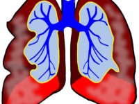 Asthma- Do you know what to look out for?